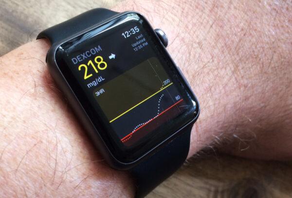 apple watch 7 измерение сахара в крови